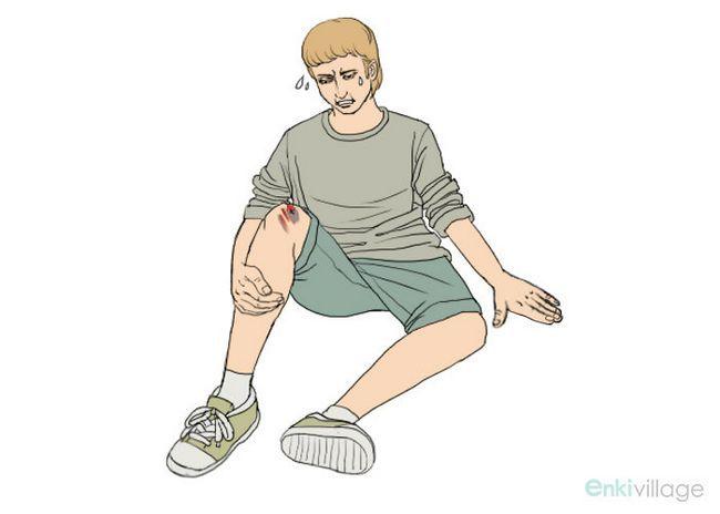 bleus jambes causes